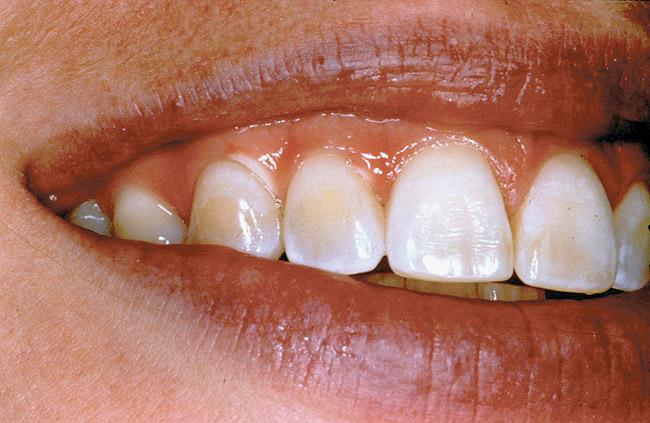 Thuốc tẩy trắng răng có tác dụng cải thiện màu sắc của răng